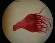 Sea jelly polyp